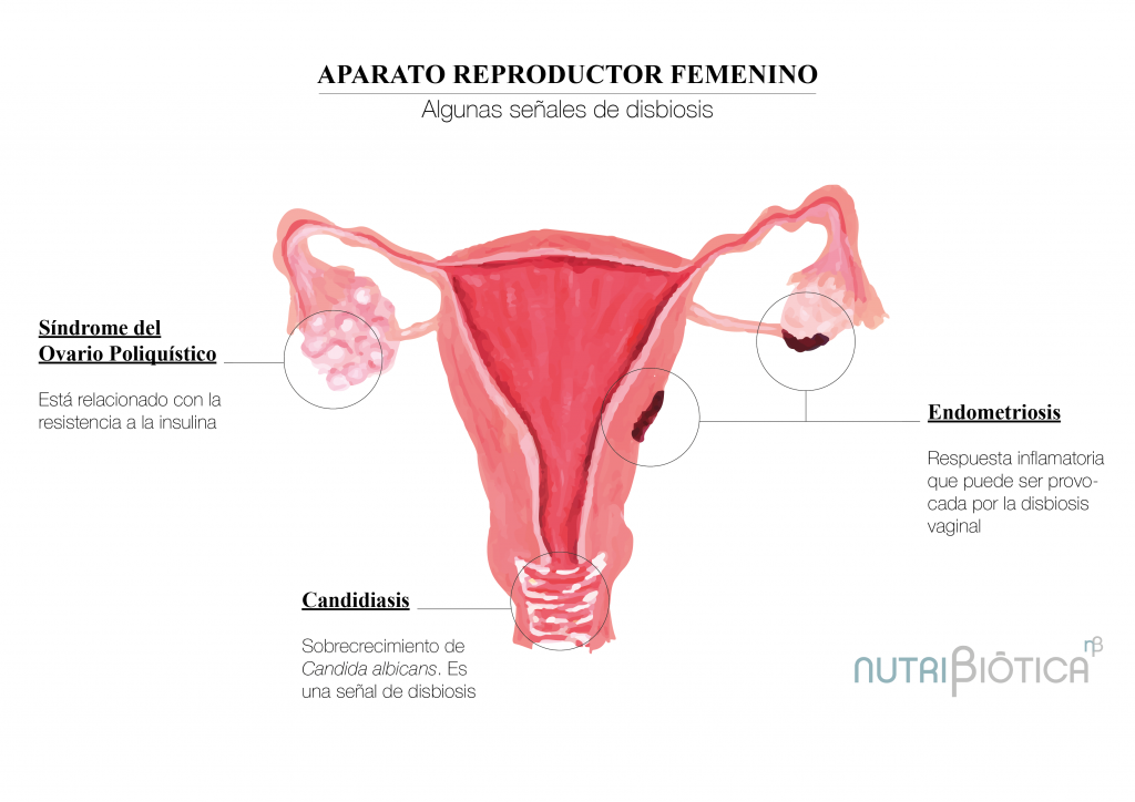 microbiota vaginal y salud hormonal femenina endometriosis